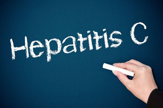 Hepatitis C – the DAA era